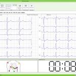07-Aufnahme-EKG-1024x795