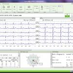 09-EKG-start-1024x769
