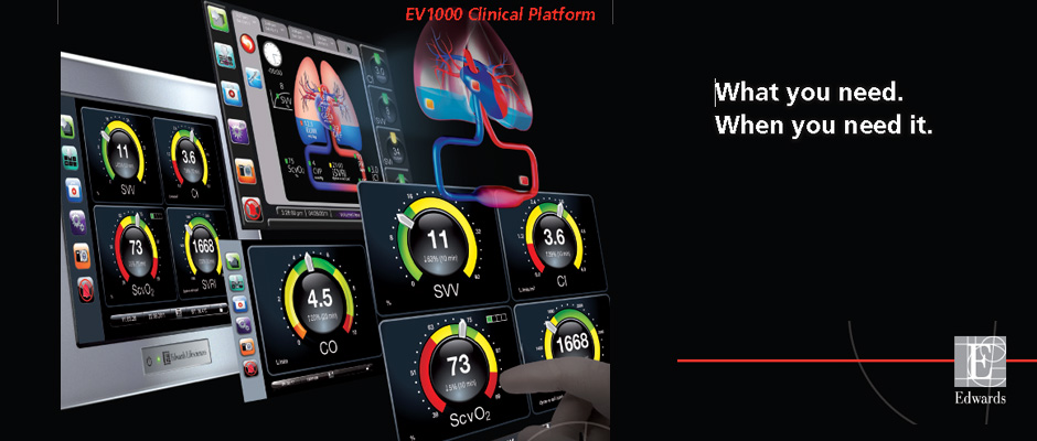 Advanced Hemodynamic Monitoring